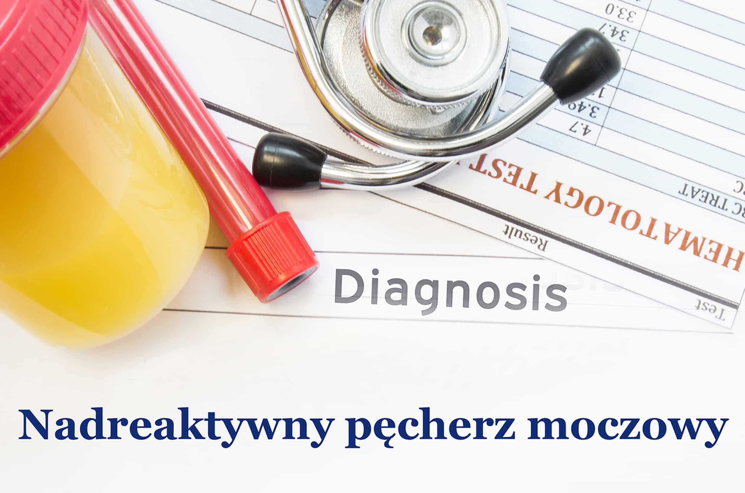 Nadreaktywny pęcherz moczowy - co warto o nim wiedzieć?